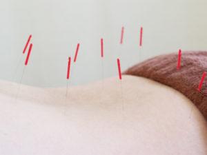 坐骨神経痛には鍼が効果的